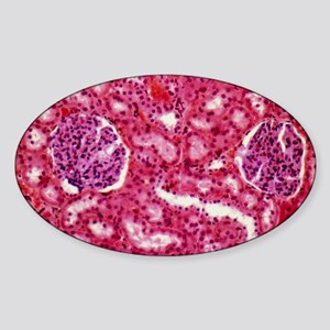 Kidney glomeruli, light micrograph Sticker (Oval)