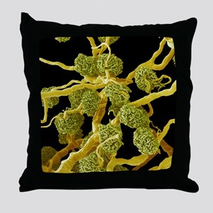 Kidney glomeruli, SEM Throw Pillow