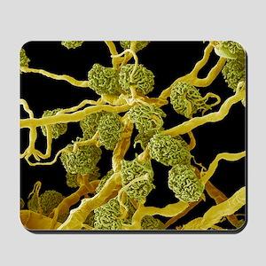 Kidney glomeruli, SEM Mousepad