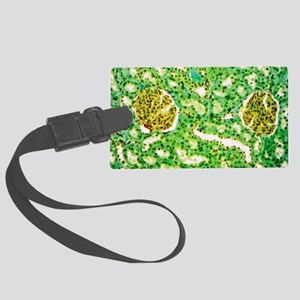 Kidney glomeruli, light microgra Large Luggage Tag