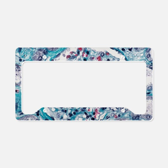 Kidney glomerulus License Plate Holder