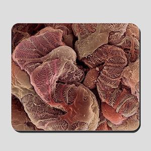 Kidney podocyte cells, SEM Mousepad