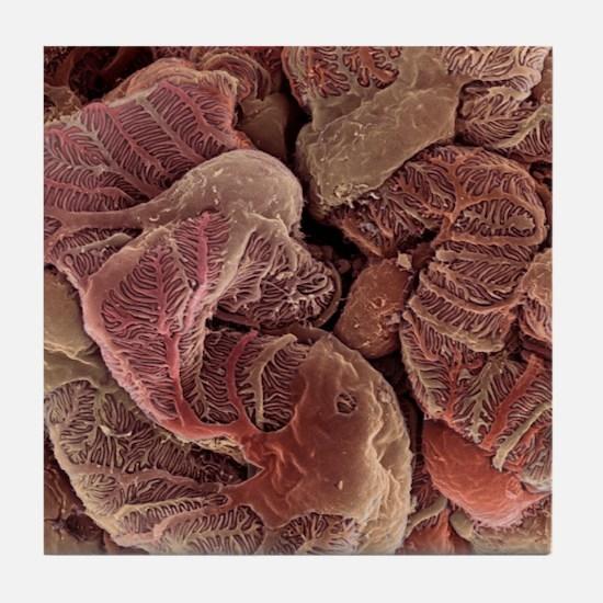 Kidney podocyte cells, SEM Tile Coaster