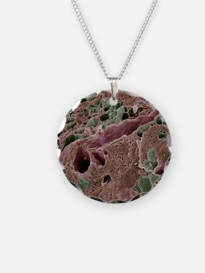 Lactating breast tissue, SEM Necklace