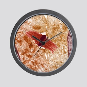 Mitotic cell division, TEM Wall Clock