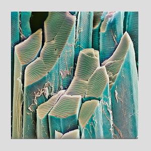 Muscle fibres, SEM Tile Coaster