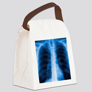 Normal chest X-ray Canvas Lunch Bag