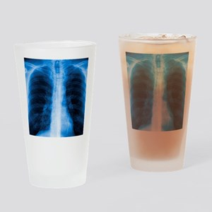 Normal chest X-ray Drinking Glass