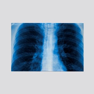 Normal chest X-ray Rectangle Magnet
