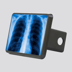 Normal chest X-ray Rectangular Hitch Cover