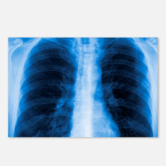 Normal chest X-ray Postcards (Package of 8)