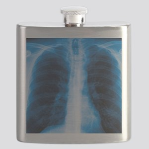 Normal chest X-ray Flask