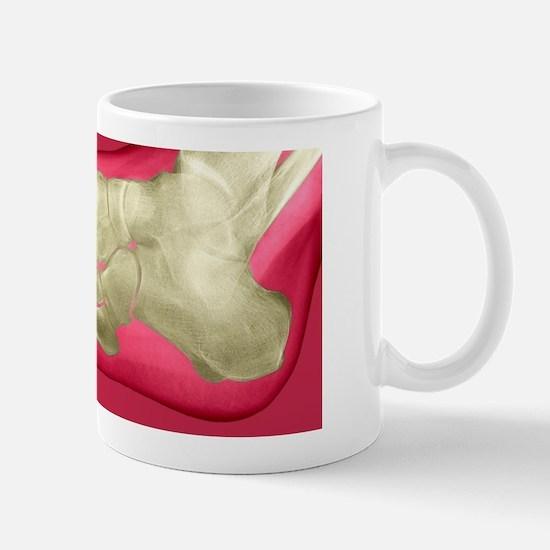 Normal foot, X-ray Mug