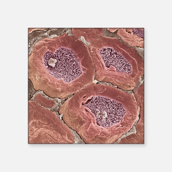 "Myelinated nerves, SEM Square Sticker 3"" x 3"""