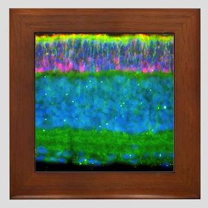 Retina Framed Tile