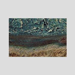 Skin layers, SEM Rectangle Magnet