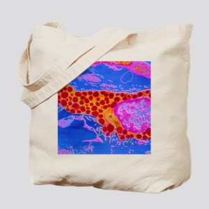 SEM of a human mast cell Tote Bag