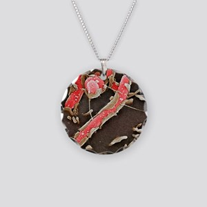 Helicobacter pylori bacteria Necklace Circle Charm