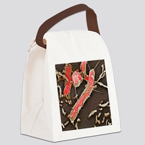 Helicobacter pylori bacteria, SEM Canvas Lunch Bag