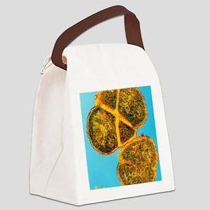 Meningitis bacterium dividing Canvas Lunch Bag