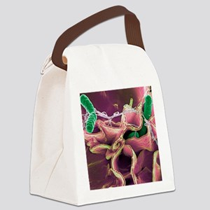 Salmonella bacteria, SEM Canvas Lunch Bag