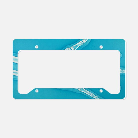 Teenager hand X-ray License Plate Holder