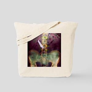 Swallowed razor and razor blades, X-ray Tote Bag