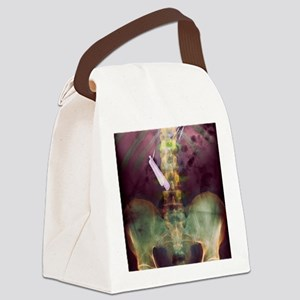 Swallowed razor and razor blades, Canvas Lunch Bag