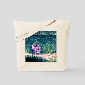 Testicular cancer, ultrasound scan Tote Bag