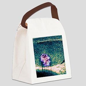 Testicular cancer, ultrasound sca Canvas Lunch Bag