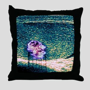 Testicular cancer, ultrasound scan Throw Pillow