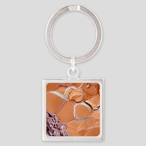 Thyroid gland, SEM Square Keychain