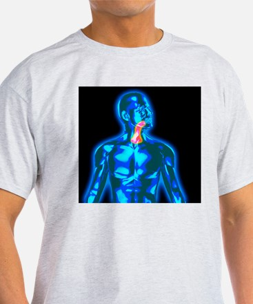 Throat pain T-Shirt