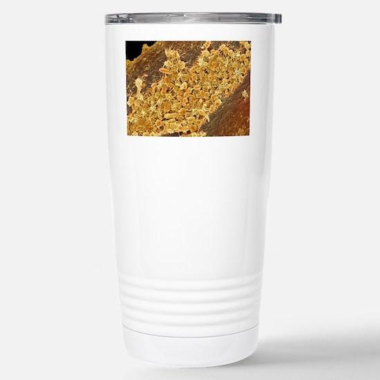 Tongue bacteria, SEM Stainless Steel Travel Mug