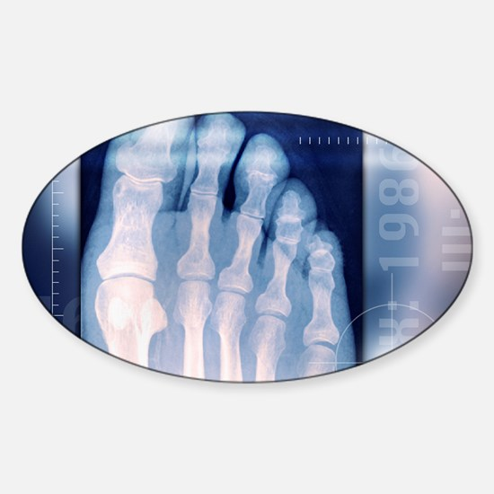 Toes, X-ray Sticker (Oval)
