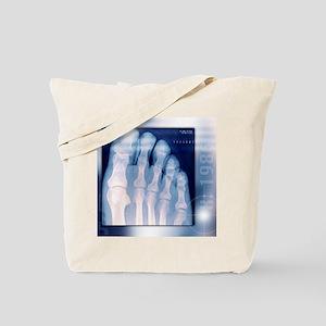 Toes, X-ray Tote Bag