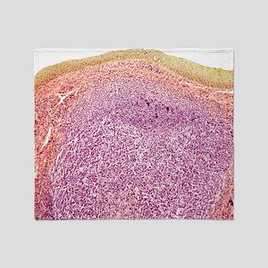 Tonsil, light micrograph Throw Blanket