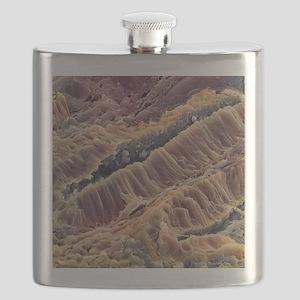 Ulcerative colitis, SEM Flask