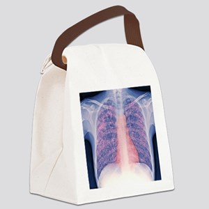 Tuberculosis, X-ray Canvas Lunch Bag