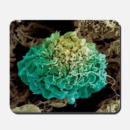 Tumour, SEM Mousepad