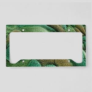 Uterine cancer License Plate Holder