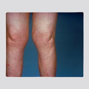 View of knees affected by osteoarthr Throw Blanket