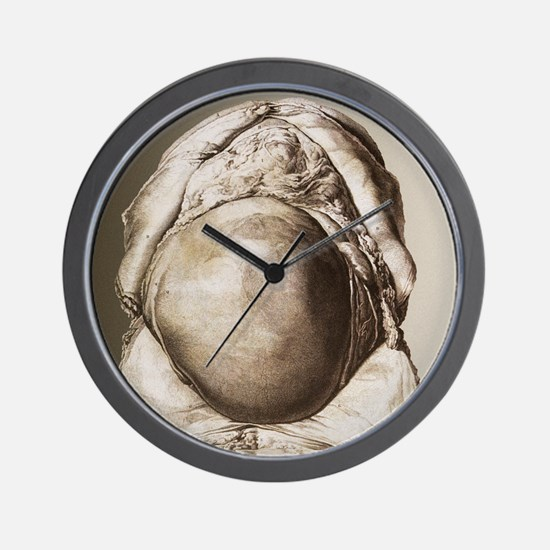 Uterus of a pregnant woman Wall Clock