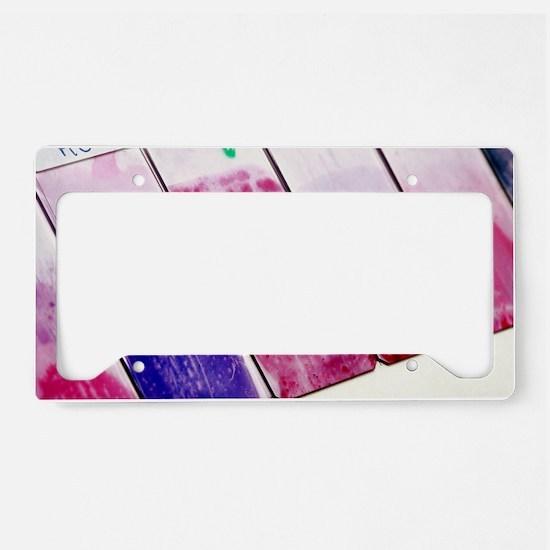 Cervical smear slides License Plate Holder
