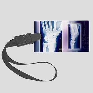 Wrist bones, X-ray Large Luggage Tag