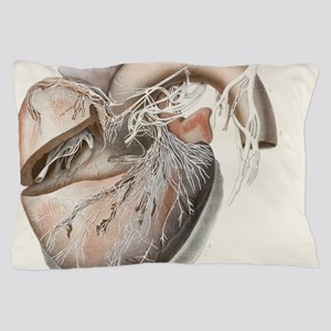 c0104512 Pillow Case
