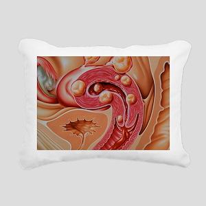Illustration of fibroids Rectangular Canvas Pillow