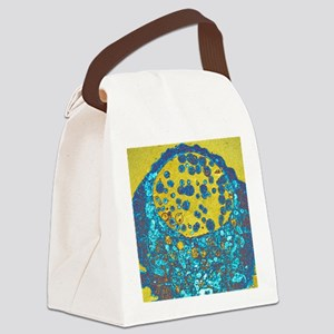 Chlamydia bacteria, TEM Canvas Lunch Bag