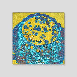 "Chlamydia bacteria, TEM Square Sticker 3"" x 3"""