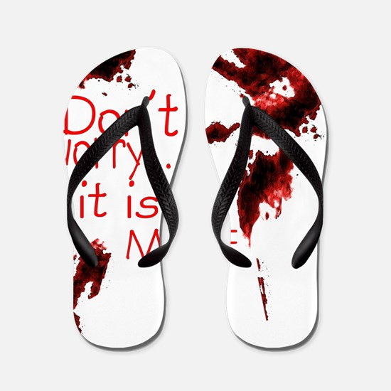 Dont worry, its not mine Flip Flops